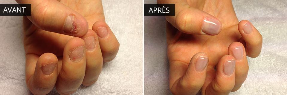 Réparation d'ongles rongés grâce à l'acrylique