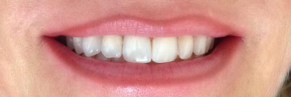 Contour des lèvres permanent